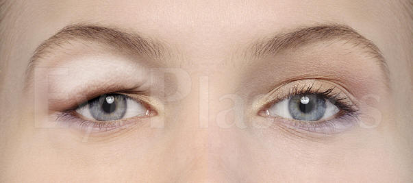 Blepharoplasty Eye Lift Eyelid Surgery